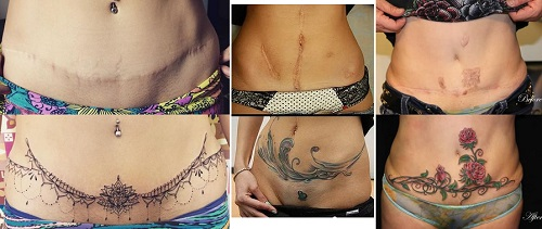 Private parts near tattoos In intimate